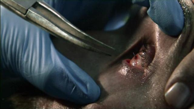 Falling Skies S2x02 Toms eye