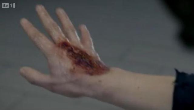 Primeval - S4x04 - Hand is affected!!
