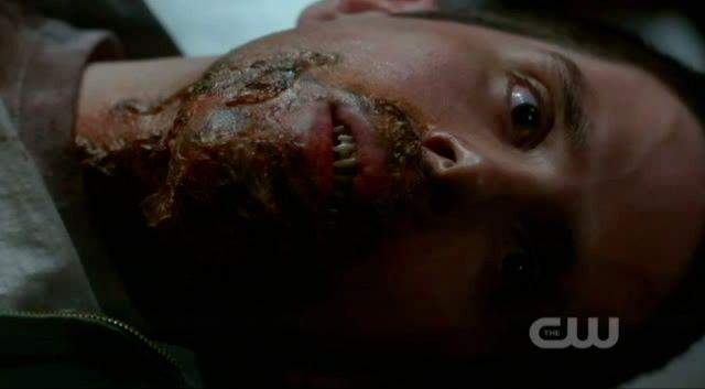 Supernatural S7x22 - Vampires died feeding